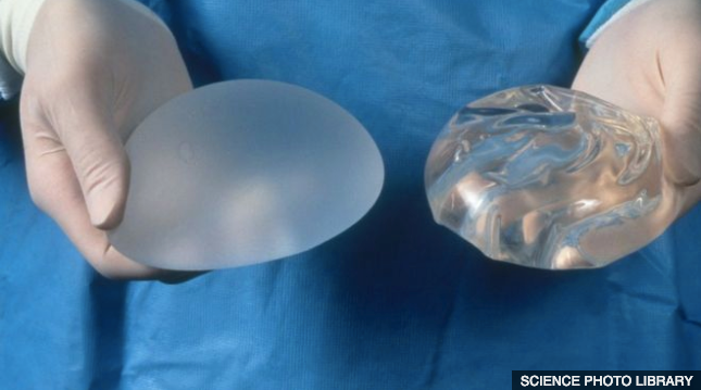 Implants and Breastfeeding: What You Should Know