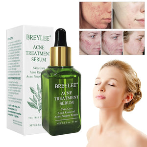 BREYLEE Acne Treatment Serum Facial Essence Anti Acne Scar Removal Cream Whitening Repair Pimple Remover Skin Care TSLM2 (17ml as shown)