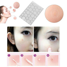 Load image into Gallery viewer, 36Pcs/1 lot Get Rid Acne Patch & Skin Tags Beauty Set Remover Pimple  Patch Treatment Hydrocolloid Patch Protecting Wounded Skin