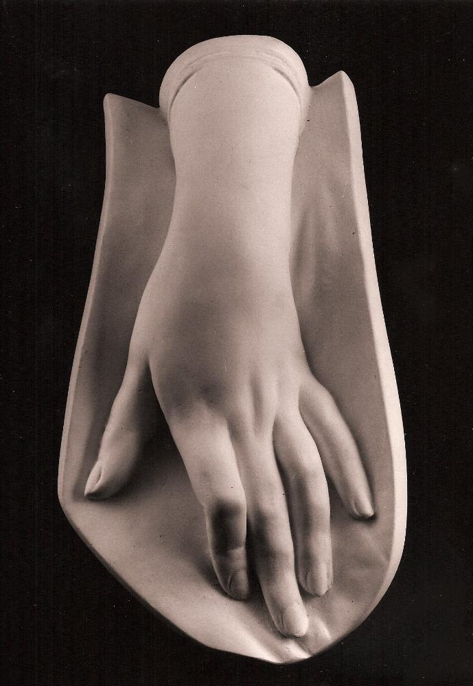 Photo of a plaster cast of a female hand