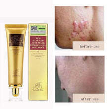 Load image into Gallery viewer, 30ml Acne Scar Removal Cream