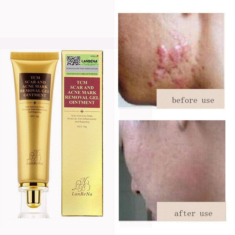 30ml Acne Scar Removal Cream