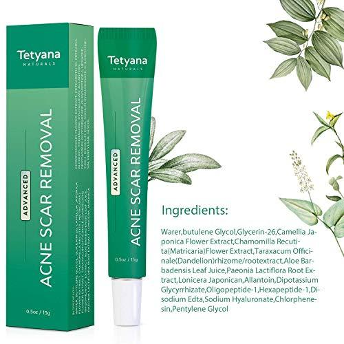Tetyana naturals Scar Gel, Acne Scar Removal for Face & Body Old & New Scars - 15g