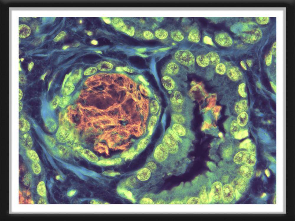 Prostatic Adenocarcinoma W/ Basophilic Mucin  Medical Artwork - Survivor Artwork