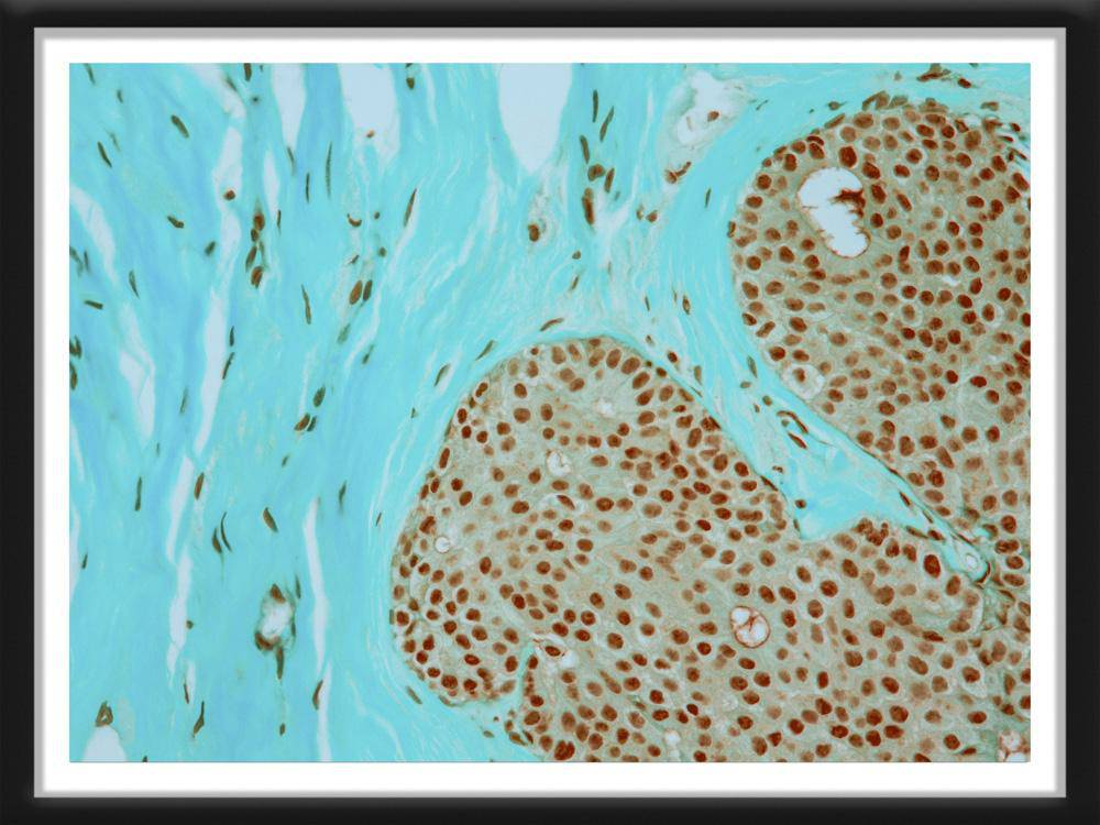 Ductal Carcinoma In Situ - Survivor Artwork