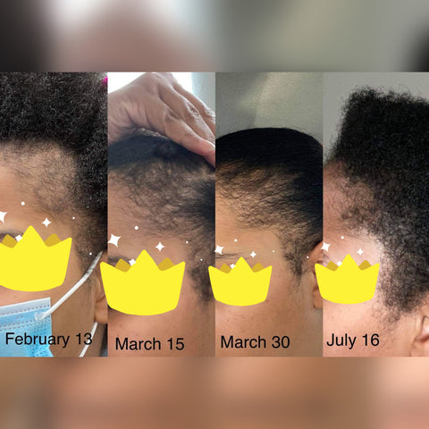 before and after Chebe oil results|African authentic Chebe Powder|Chebe oil hair growth|Queensanity|Hot oil treatments|hair care natural organic|chebe rice paste|hair growth black women|African American women|Hair loss|Thyroid hair loss|postpartum hair loss|grow your edged back|Kakadu Plum Chebe oil|vitamin c for hair growth|fruit for hair|herbs for hair growth