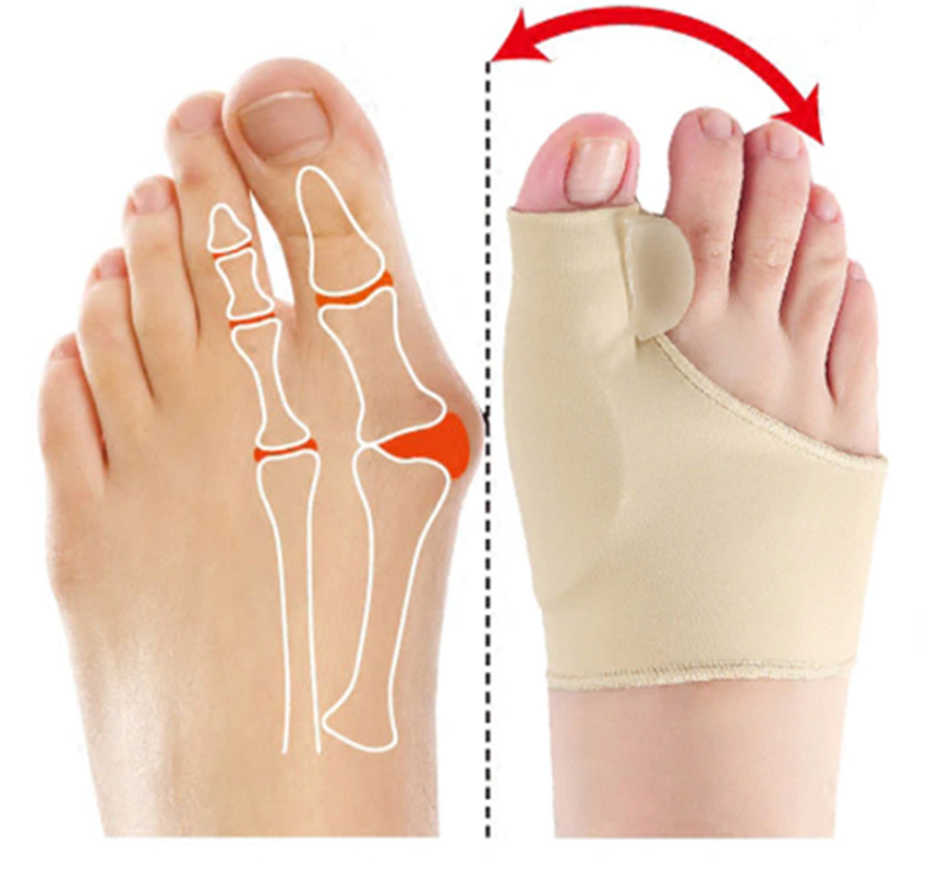 Elastic Bunion Corrector - Get Painless Treatment From Home