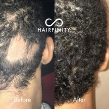 Load image into Gallery viewer, Hairfinity Infinite Edges Hair Serum - Hair Growth Treatment to Prevent Hair Loss and Stimulate Hair Follicles to Stop Hair Loss and Regrow Hair - Targets Causes of Alopecia - Sulfate & Silicone Free