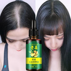 Ginger Hair Nutrients Solution | 7 Days Hair Treatment Oil - Ginax Store