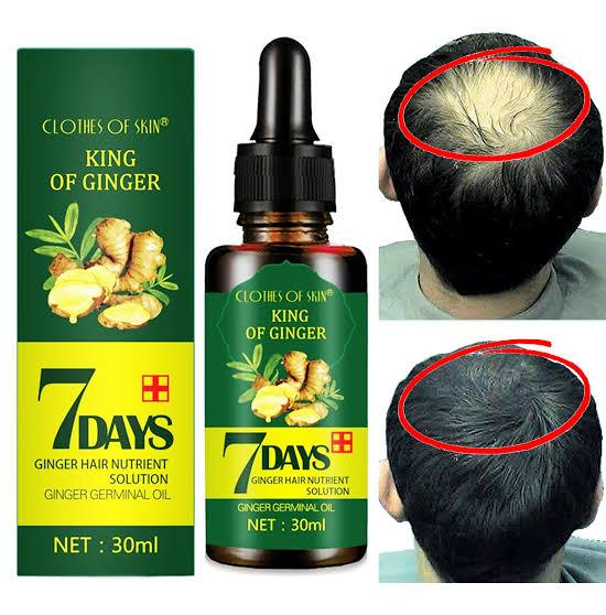 7 Days Ginger Hair Growth Serum | Anti-Hair Loss Oil