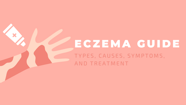 eczema guide: types, causes, symptoms, treatment