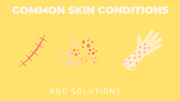 common skin conditions and solutions