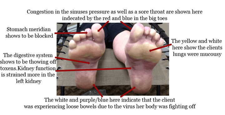 What is Foot Compression Reflexology?
