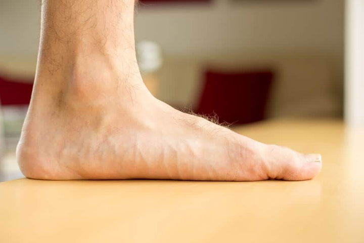 Flat Foot Syndrome