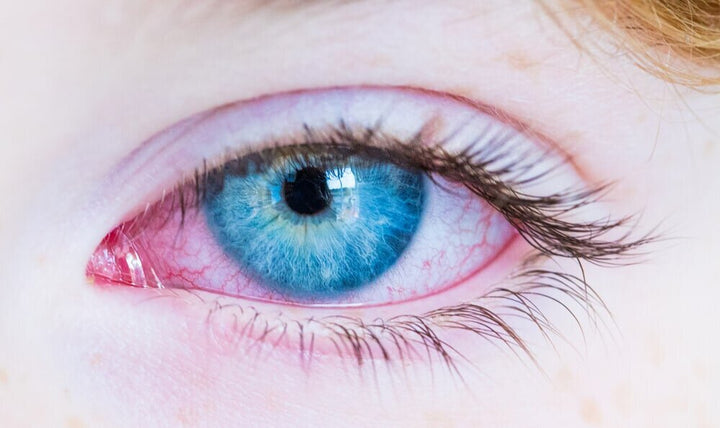 Ozone Therapy and Pink Eye