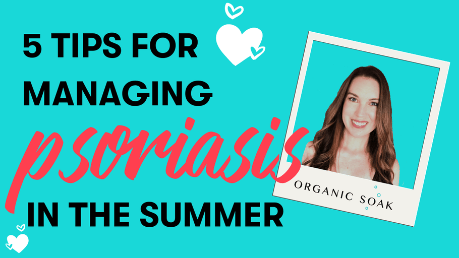 5 Tips for Managing Psoriasis in the Summer