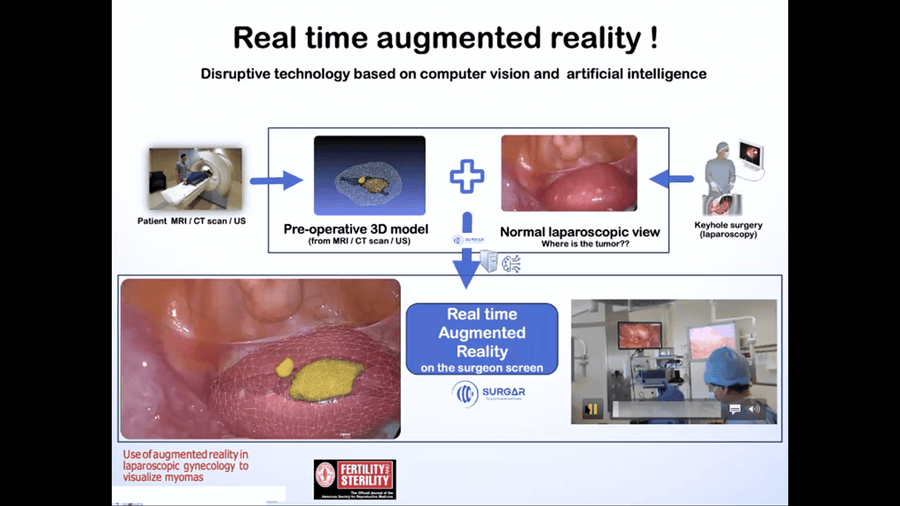 Augmented Reality in Gynecological Surgery