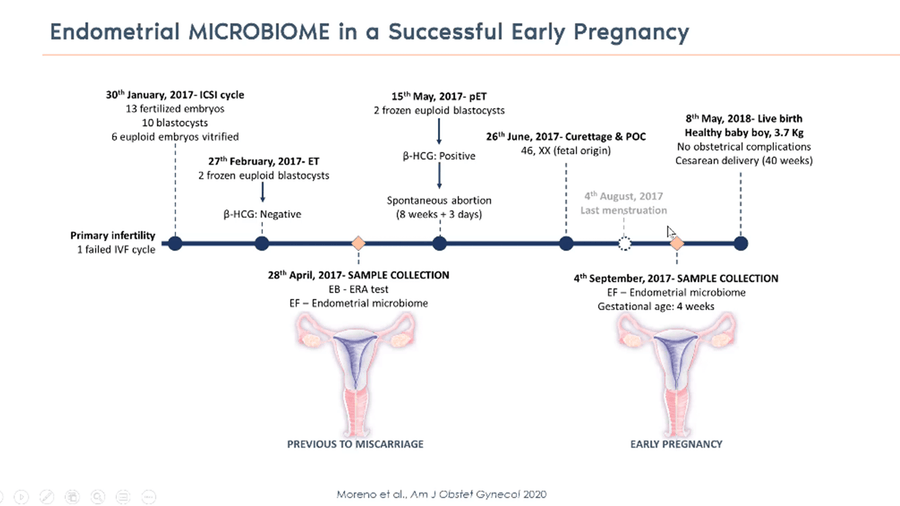 The Relevance of Uterine Microbiome in IVF Treatment
