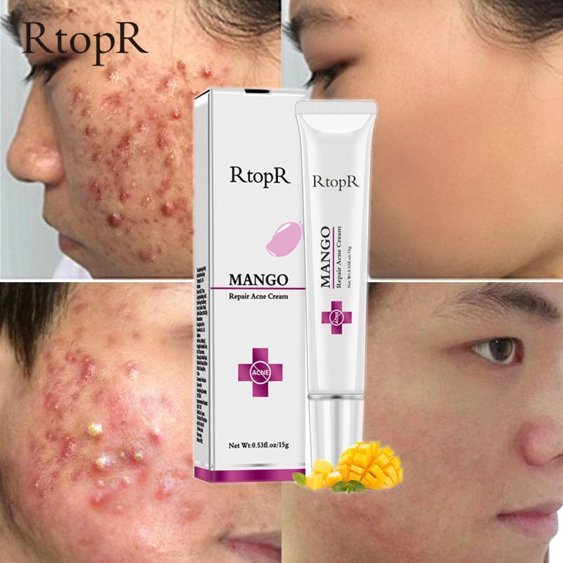 Acne Treatment Face Cream Blackhead Repair Gel Oil Control Shrink Pores Scar Whitening Moisturizer Skin Care Korean Cosmetics