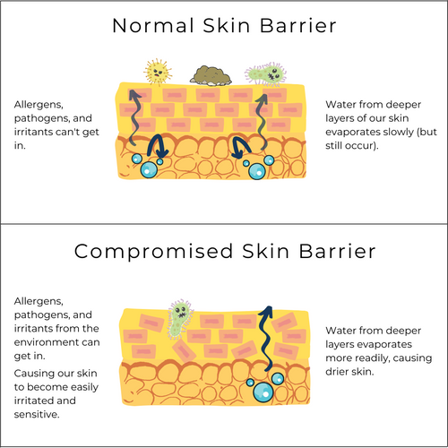 Illustrative comparison between normal and compromised skin barrier