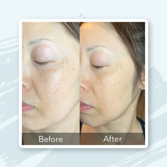 Book a Glycolic Peel Medical Spa Treatment in Knoxville, TN
