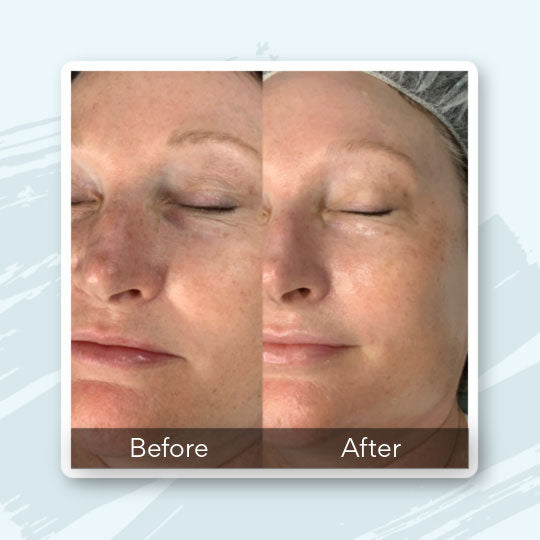iS CLINICAL Fire & Ice Facial Before & After Photo