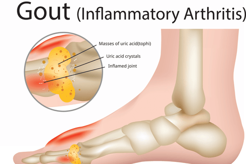 Gout Causes And Symptoms - By Best Health Naturally