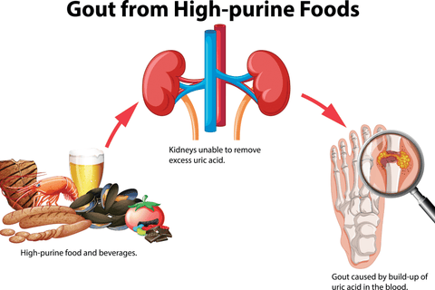 Gout Foods To Avoid - High purine foods - Best Healthy Naturally
