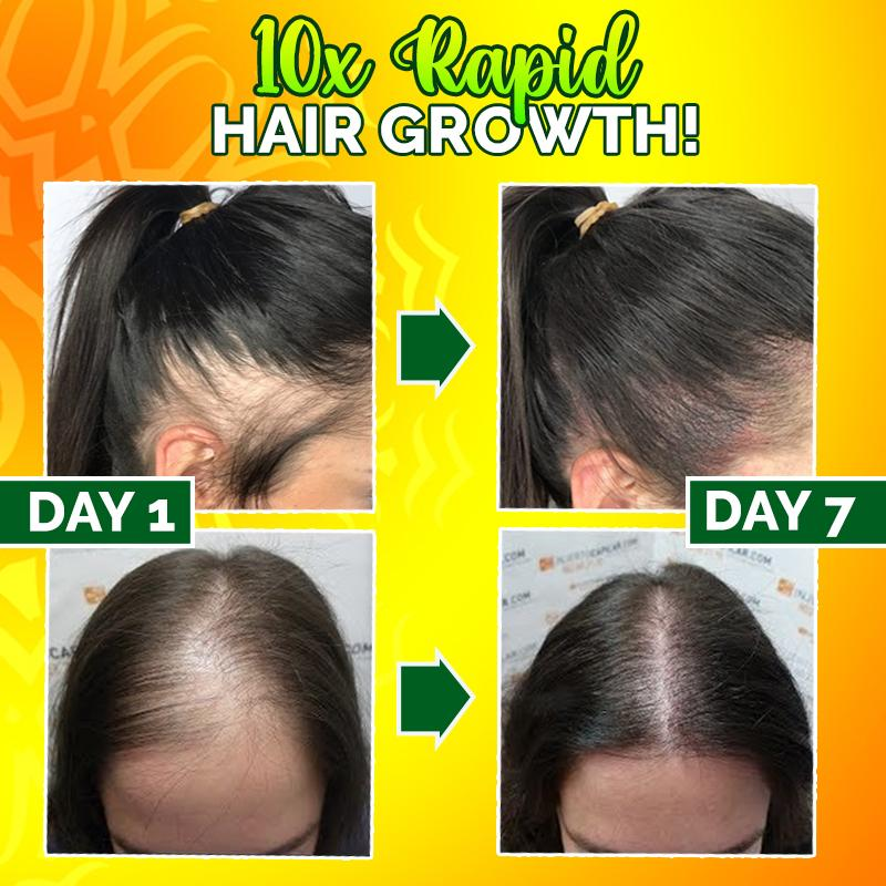 Copy of 10X-Regro Strong Hair Serum (✨50%OFF) Hair DazzyCandy