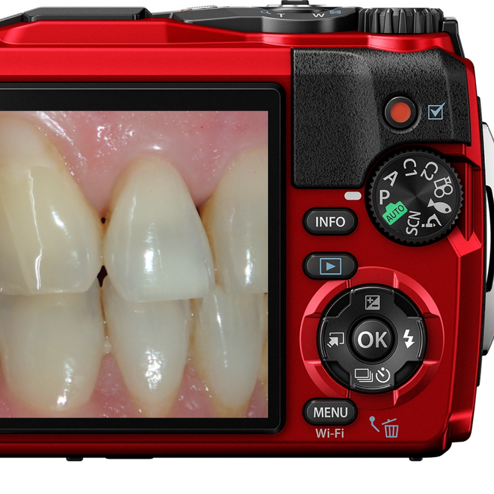 dental photography, dentist camera, clinical images, aesthetic dentistry, clincam, orthodontics, veneers, dental students, implants, orthodontists, photos, teeth, dental, dentistry, cosmetic dentistry, tooth whitening, straight teeth, smiles, lips, cheeks