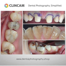 Load image into Gallery viewer, Clincam - Dental photography camera