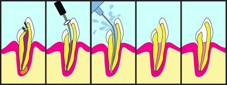 The Do's And Don'ts After A Root Canal Treatment