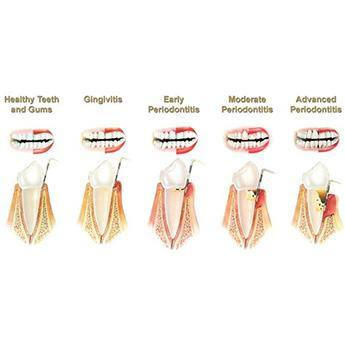Periodontal disease, just what is it?