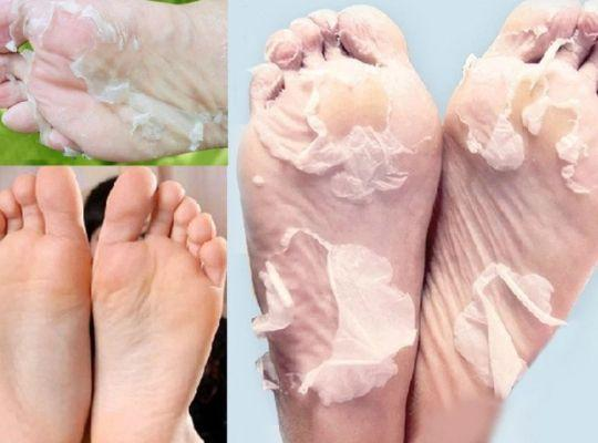 Deep Moisturizing & Exfoliating Feet Peel Mask (1 Pair Set)