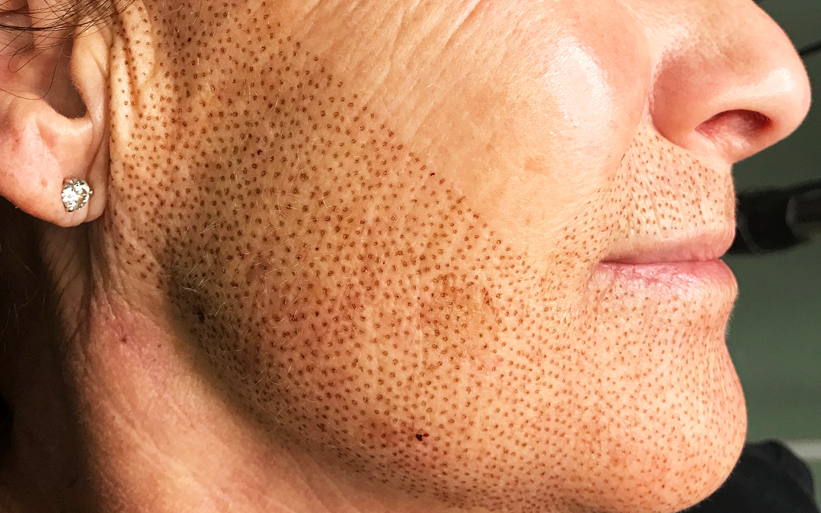 Zynergy Beauty Salon in Gilbert, Arizona offers Plasma Pen services. Plasma Pen is a non-invasive procedure to tighten and lift skin. It treats multiple layers of the skin to improve wrinkles and elasticity.