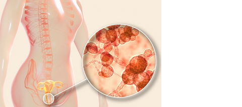 Candida and discharges you need to know about