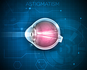 Does LASIK Correct Astigmatism Better Than Glasses or Contact Lenses?