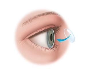 WHAT PARTS OF THE EYE CAN BE TRANSPLANTED?