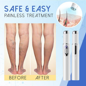 Blue Light Therapy Pen for Varicose Veins Skin StrongestGorilla