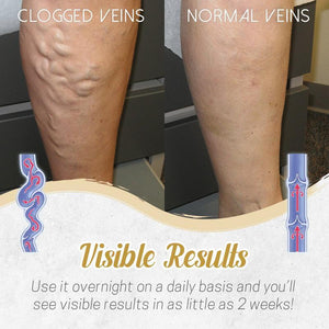 Herbal Detox Patch for Varicose Veins Skin starryhome