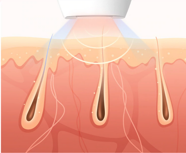 Laser hair removal showing hair roots and light graphic