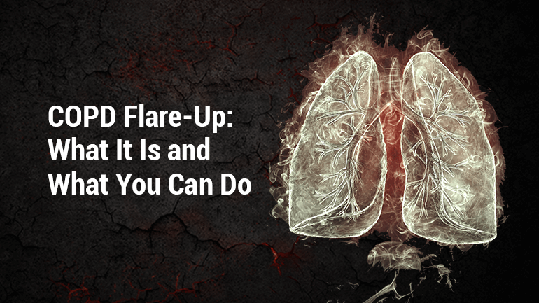 COPD Flare-Up: What It Is and What You Can Do