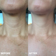 Neck Smoothing Kit