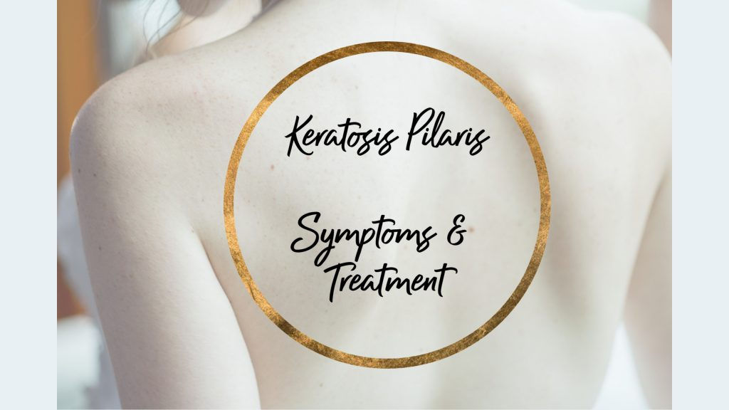 Keratosis Pilaris symptoms and treatment.