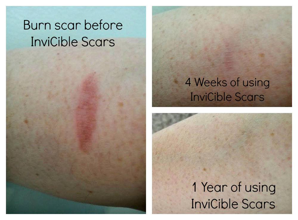 1 year later using @inviciblescars on my burn scar and it is virtually undetectable! via @agirlsgottaspa
