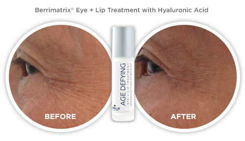 Berrimatrix Eye + Lip Treatment with Hyaluronic Acid