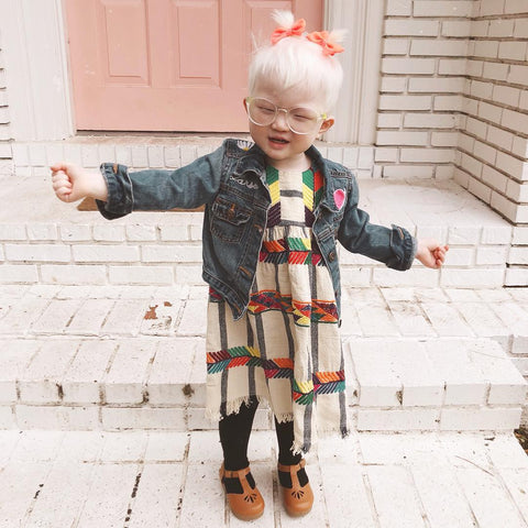 happy child with albinism