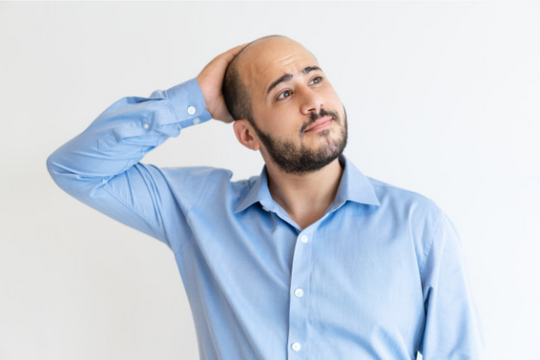 Why Do Men Go Bald and How To Prevent It?