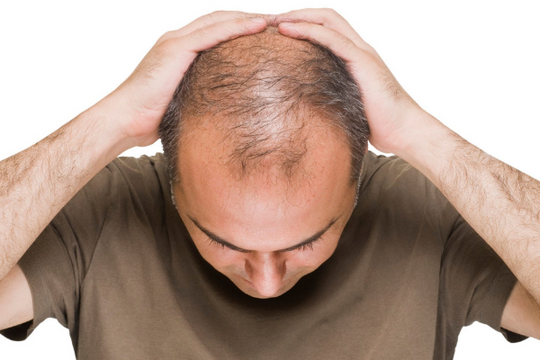 Family History And Hair Loss