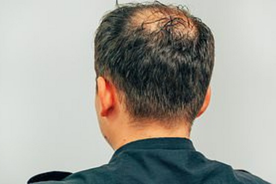 Is there any real solution to male baldness?